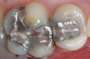 Dental_Mercury.jpg